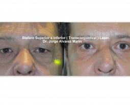 Blefaroplastia Transconjuntival ¿Por qué es la mejor opción ?